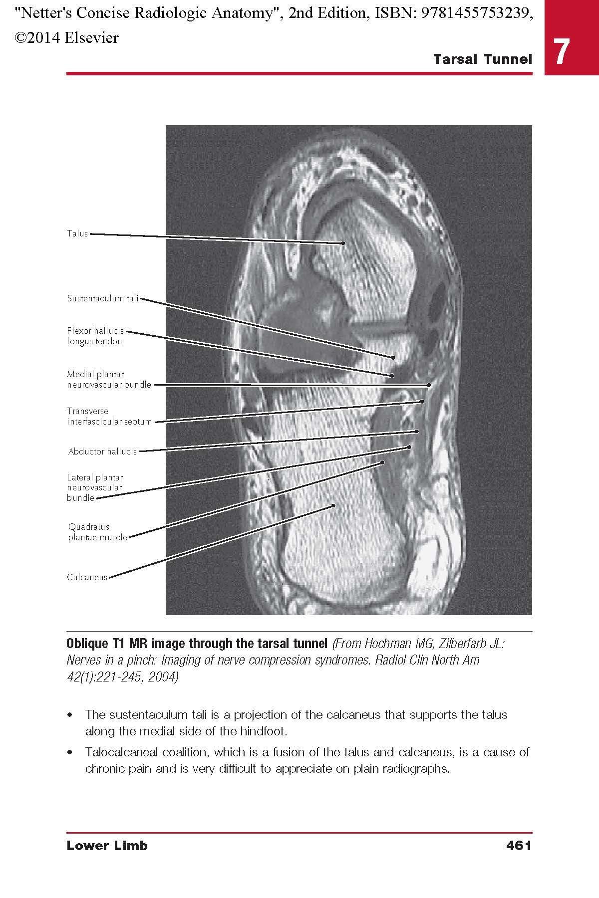 Buy Netter\'s Concise Radiologic Anatomy (Netter Basic Science) Book ...
