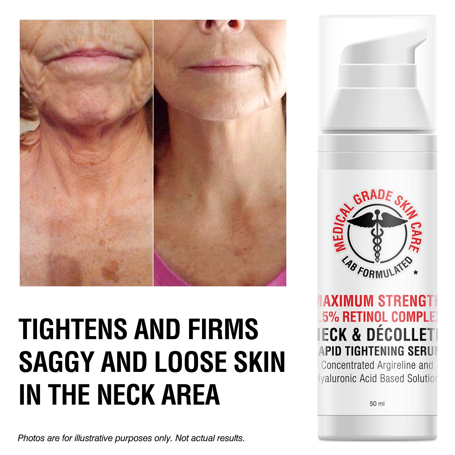 Neck & Décolleté Tightening Serum   Best Anti-Aging Firming Neck Cream Made With Maximum Strength 2.5% Retinol Complex   Concentrated With Argireline and Hyaluronic Acid by SkinPro (Image #2)