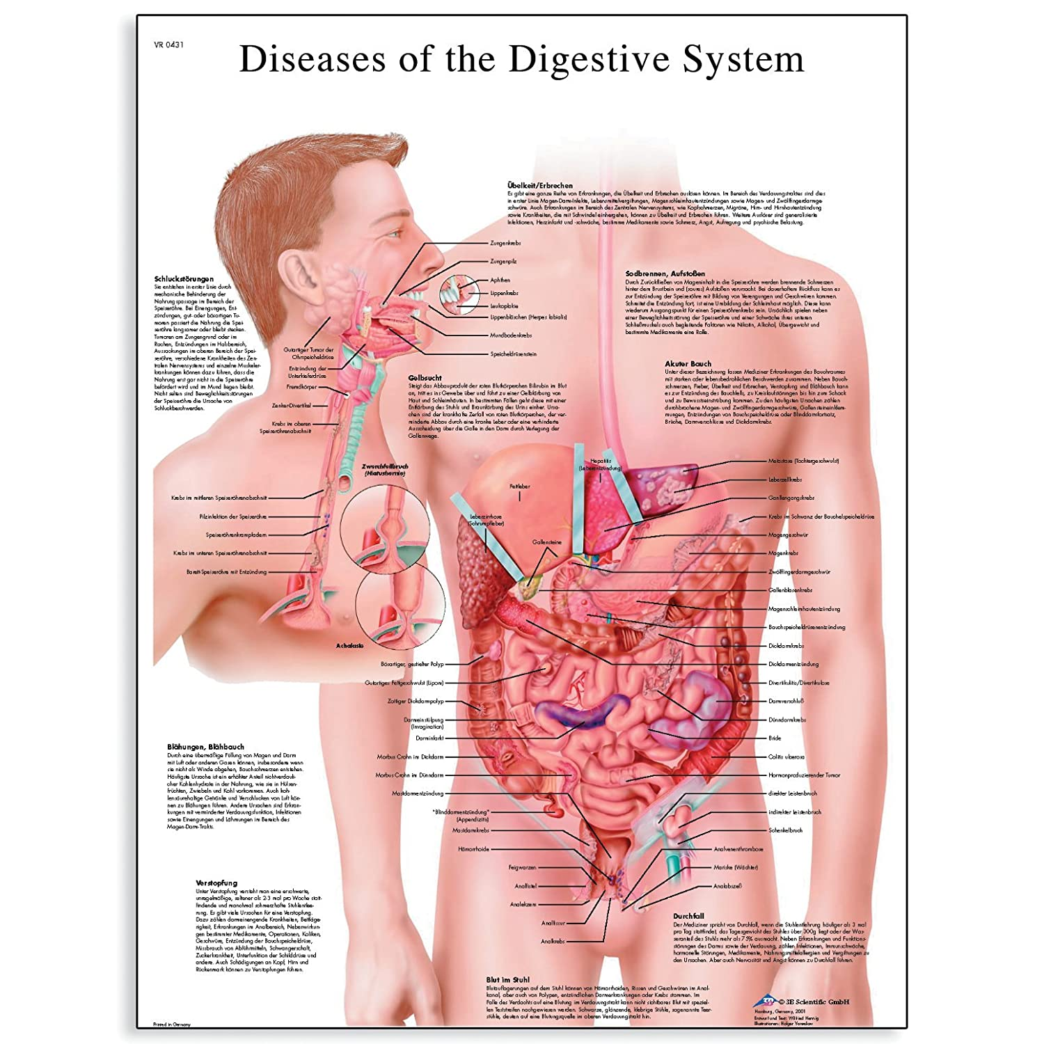 Amazon 3b Scientific Vr1431l Glossy Laminated Paper Diseases Of