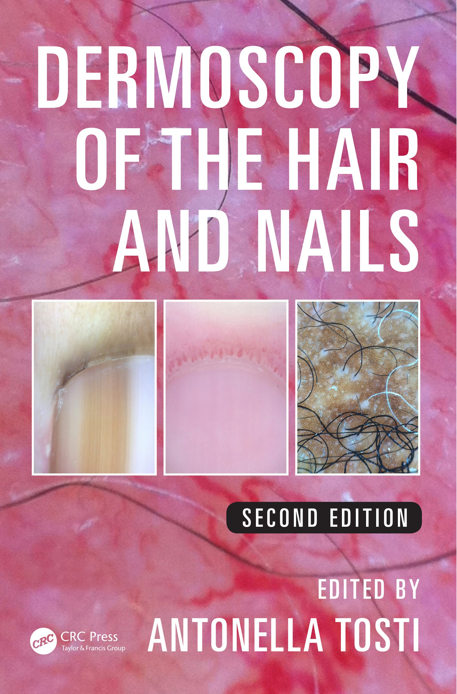 Dermoscopy of the Hair and Nails (English Edition)