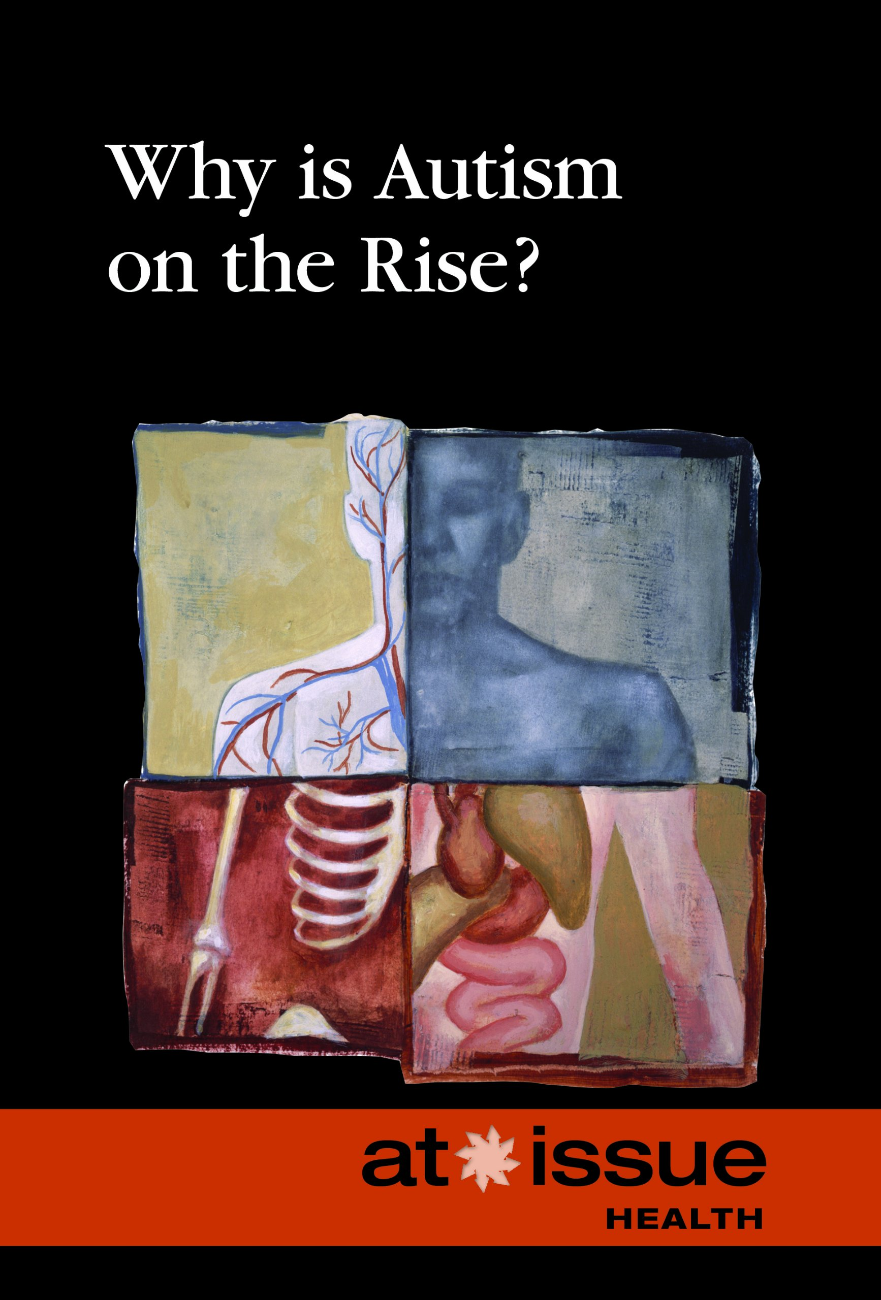Download Why Is Autism on Rise? (At Issue) ebook