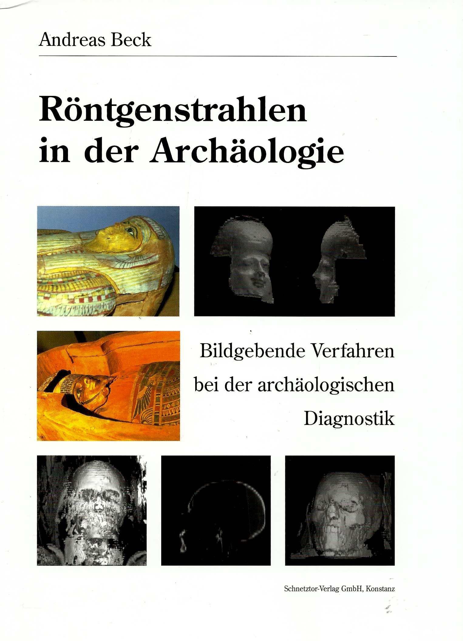Fein Alles über Röntgenstrahlen Zeitgenössisch - Anatomie Ideen ...