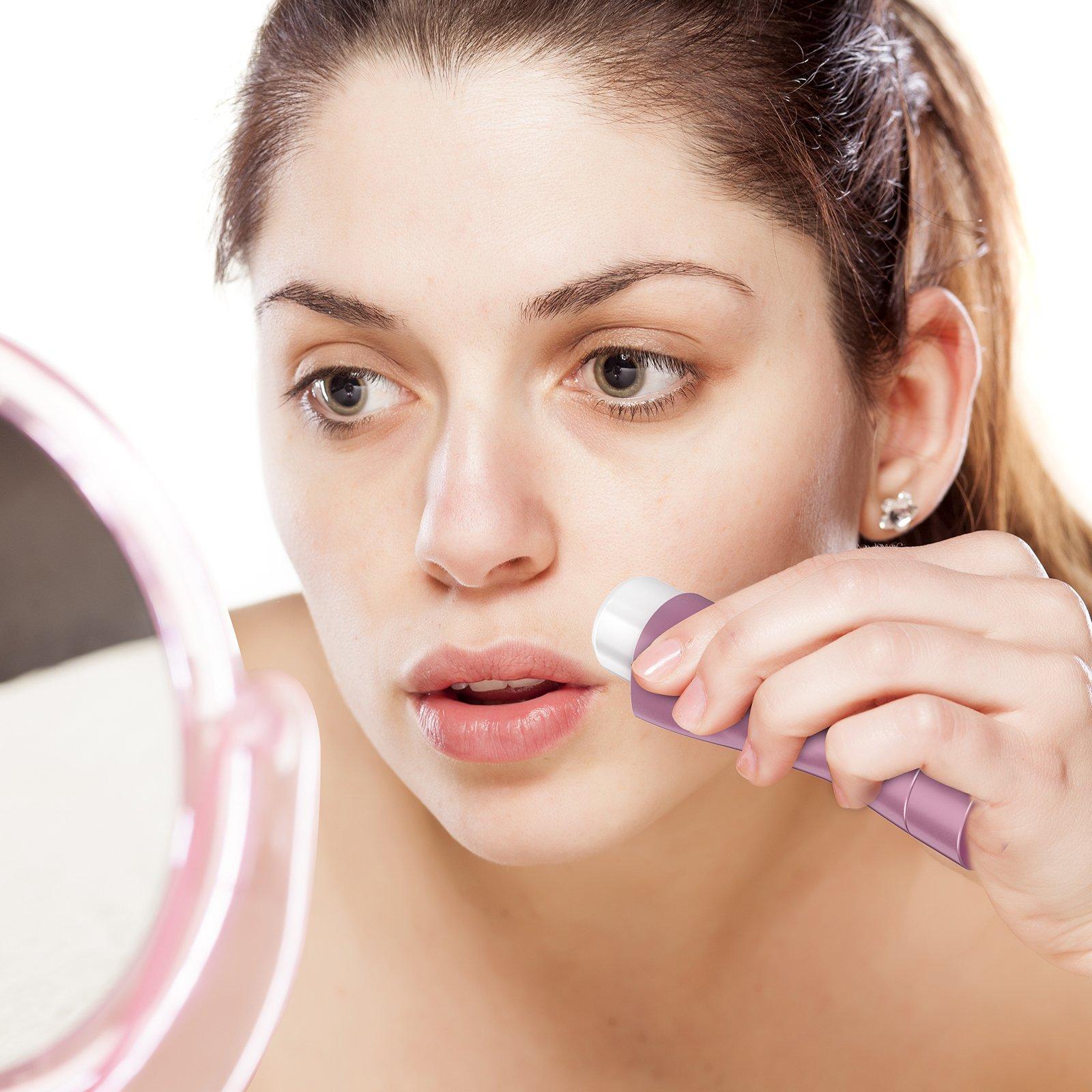 Facial hair removal — photo 6