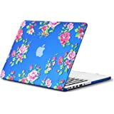 """Kuzy Vintage Flowers Rubberized Hard Case for MacBook Pro 13.3"""" with Retina Display A1502 & A1425 - Blue"""