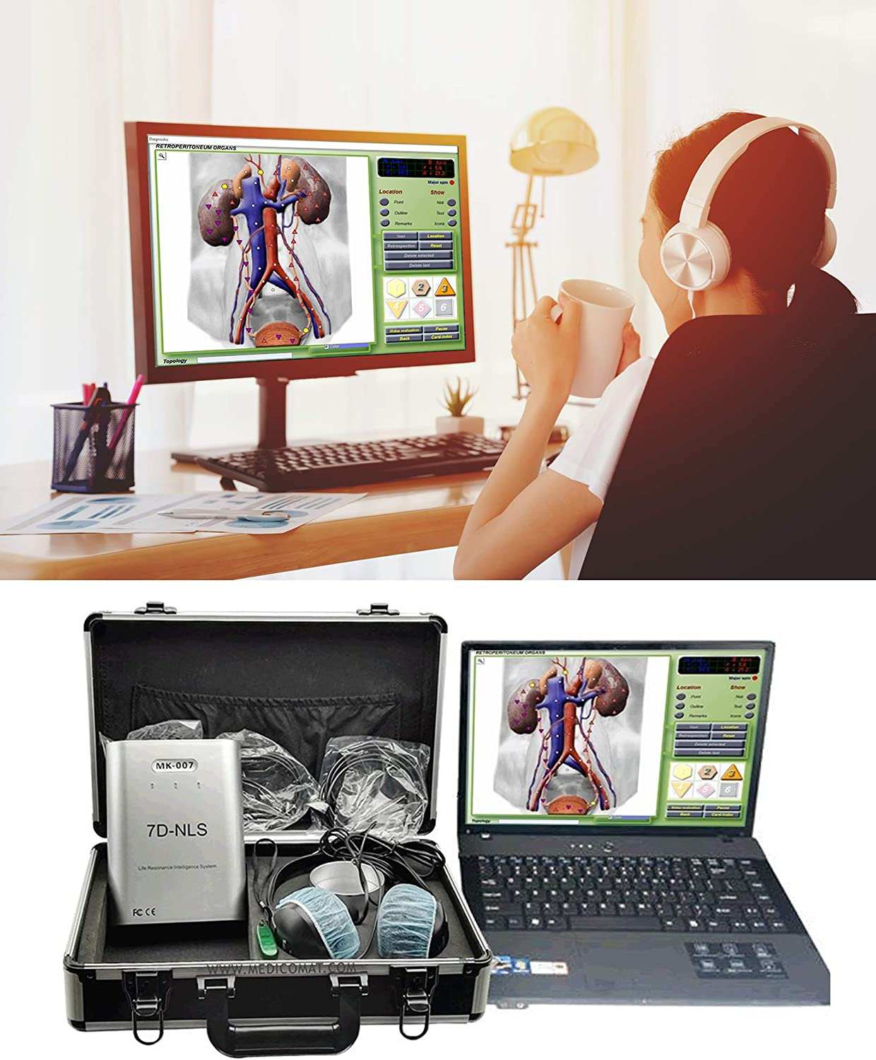 Amazon Com Testing And Treatment Yourself At Home Wellness Program Package Medicomat 7d Nls Wellness Computer Gadgetsfor Test And Therapy Of Physical And Emotional Health Home Audio Theater