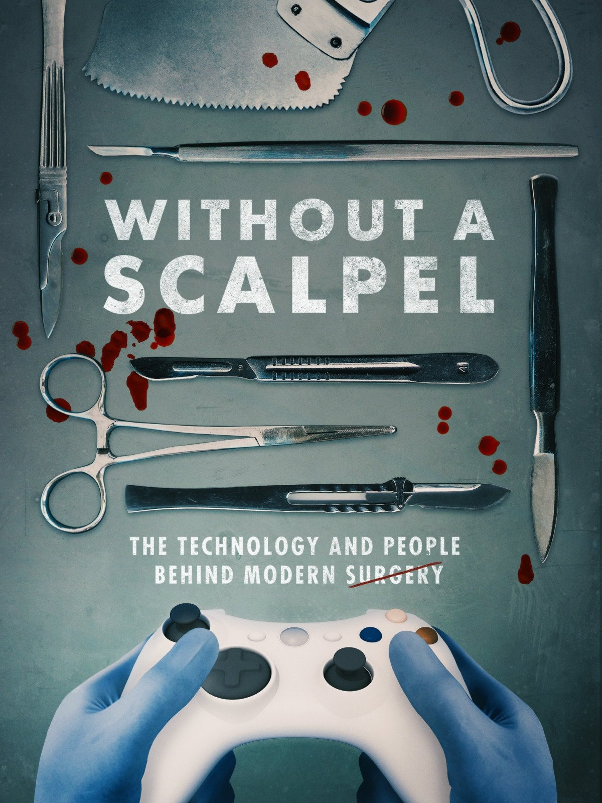 Amazon.com: Without a Scalpel: Dr. Gregg Alzate, Dr. E. Brooke ...