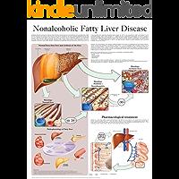 Nonalcoholic Fatty Liver Disease e chart: Full illustrated