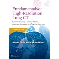Fundamentals of High-Resolution Lung CT: Common Findings, Common