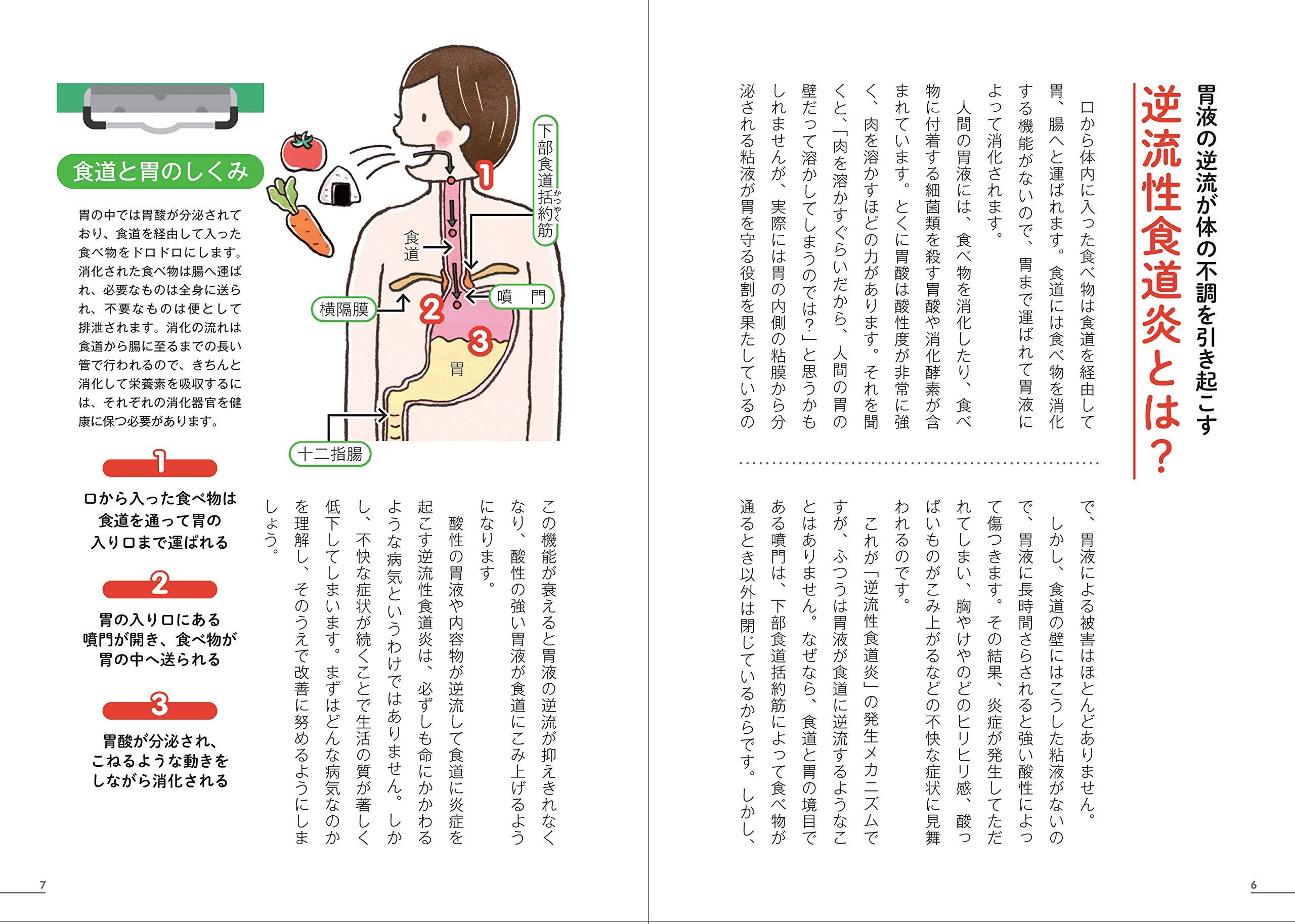 炎 食道 症状 性 逆流