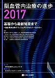 脳血管内治療の進歩2017  基礎から最新知見まで~脳血管内治療ブラッシュアップセミナー2016~