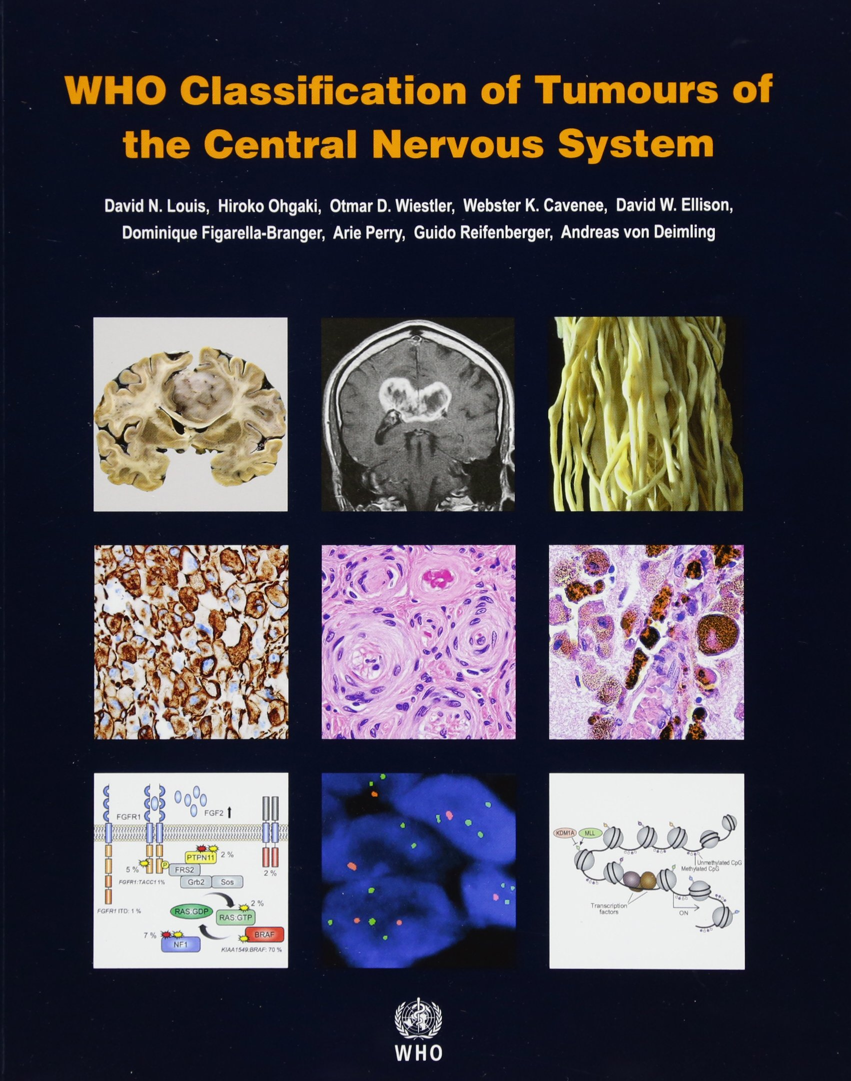 Histological Typing of Tumours of the Central Nervous System