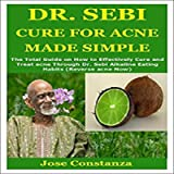 Dr. Sebi Cure for Acne Made Simple: The Total Guide on How to Effectively Cure and Treat Acne Through Dr. Sebi Alkaline…