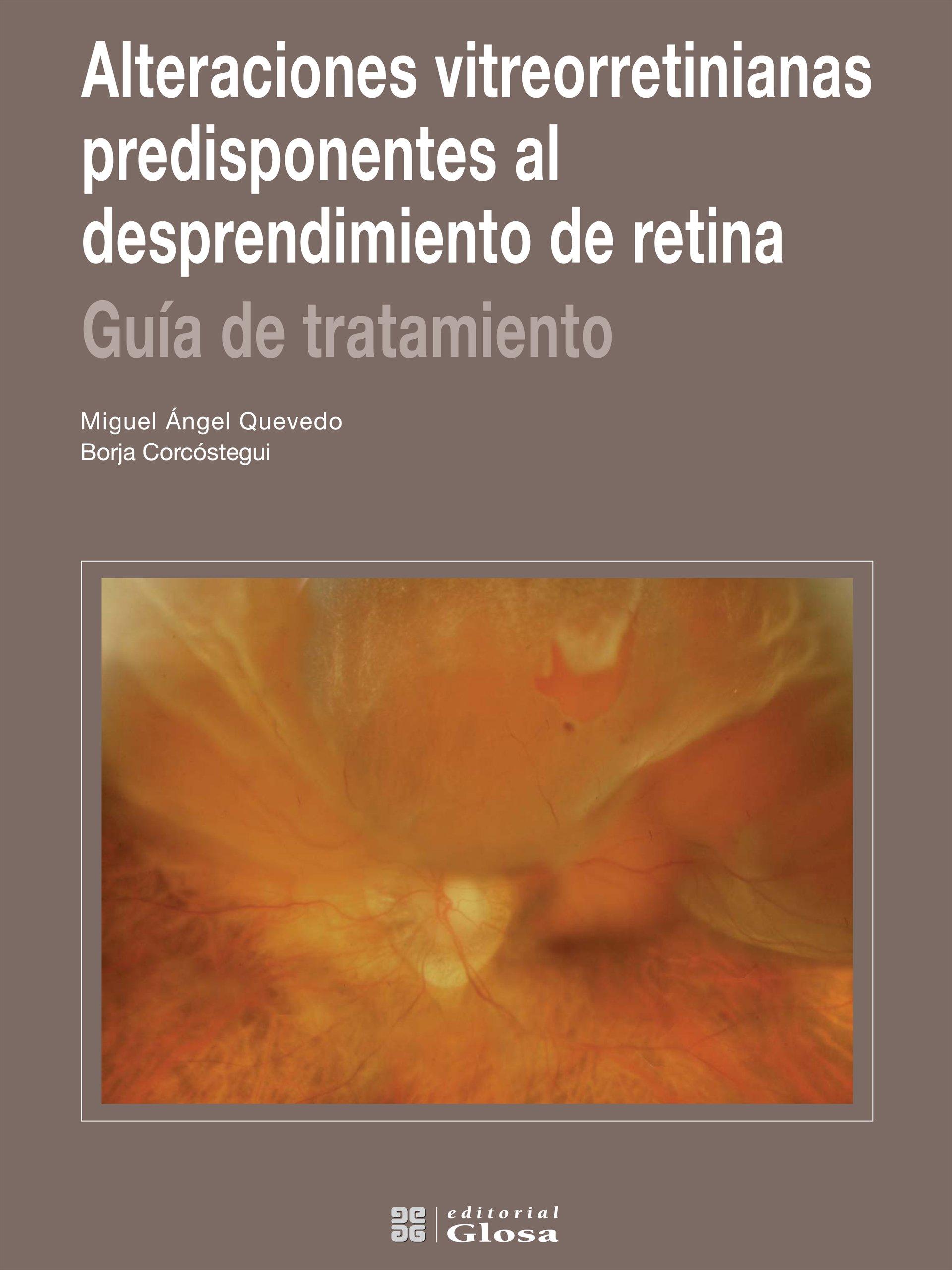 Alteraciones vitreorretinianas predisponentes al desprendimiento de retina. Guía de tratamiento (Spanish Edition) ebook