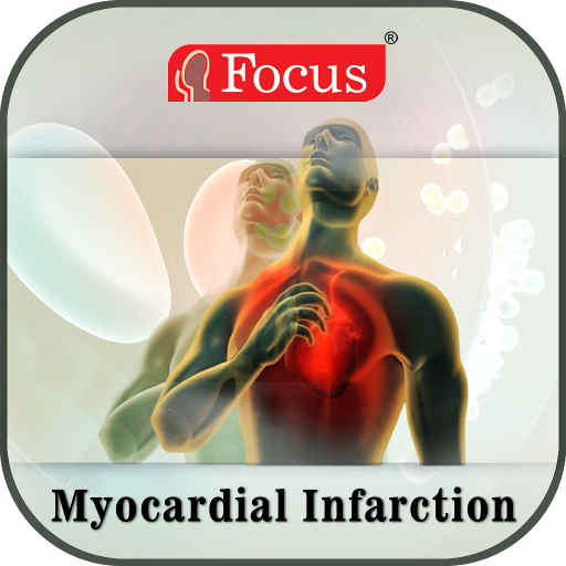 Myocardial Infarction   An Overview