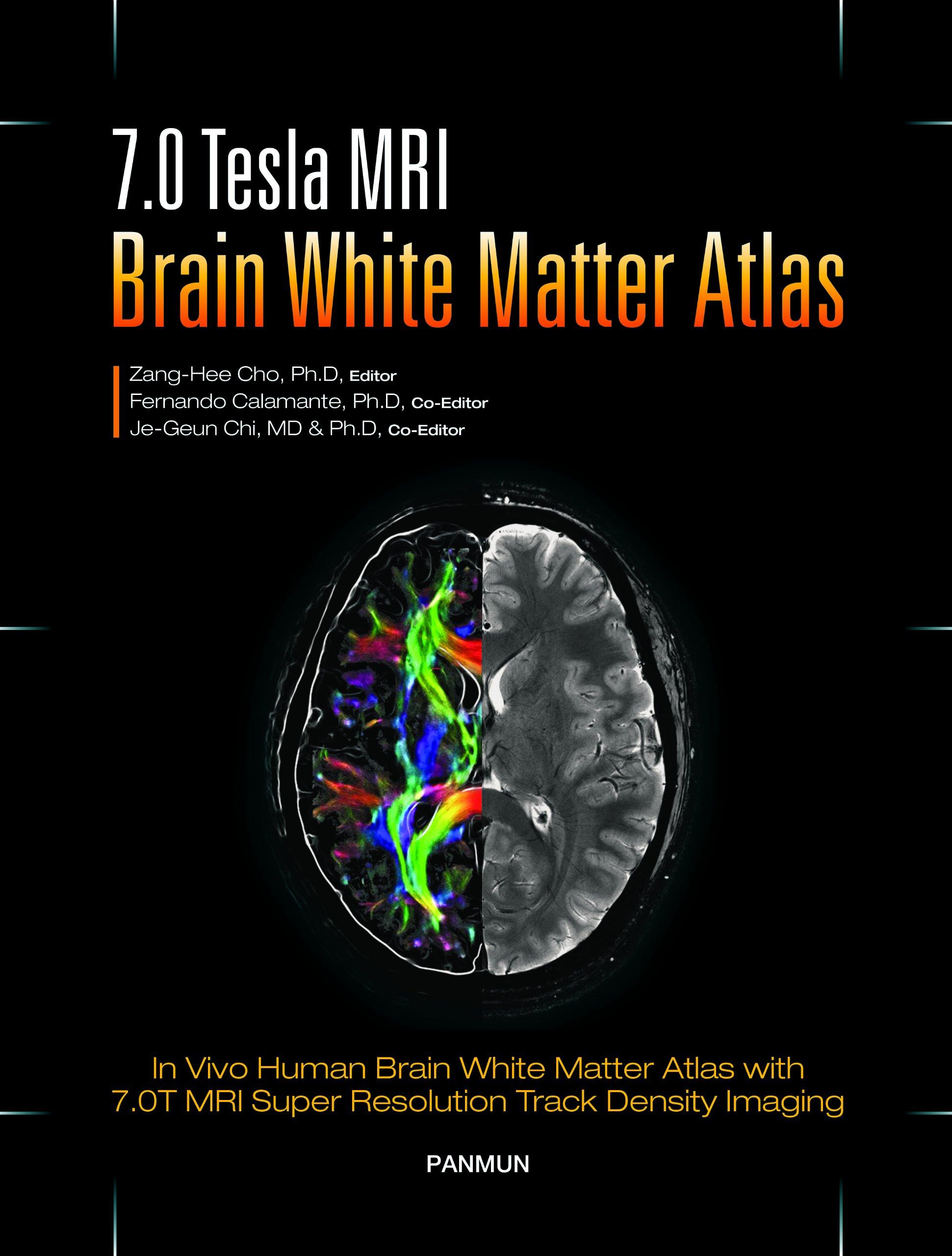 Amazon.in: Buy 7.0 Tesla MRI Brain White Matter Atlas: 1 Book Online ...