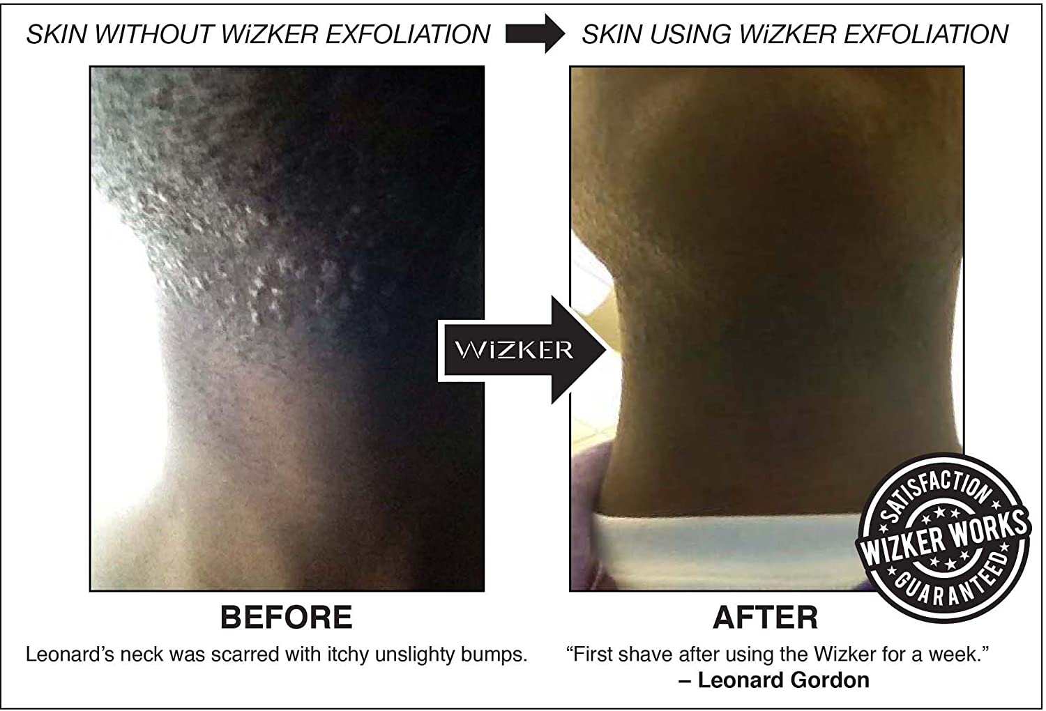 Wizker Brush: Eliminates Razor Bumps And Prevents Ingrown Hairs, Firmflex  Exfoliating Bristles, Sealed Box: Amazon: Beauty