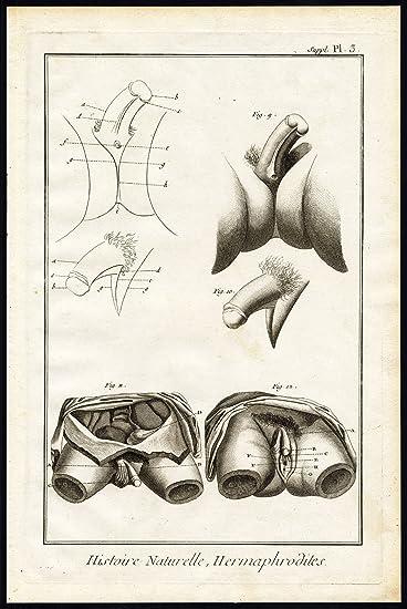 Amazon Antique Print Hermaphrodites Sexuality Sex Organ Vagina