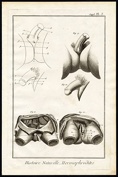 Amazon Antique Print Hermaphrodites Sexuality Sex Organ Vagina