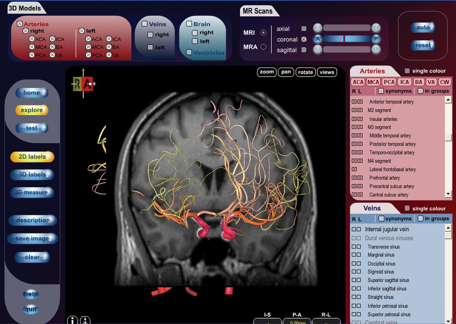 The Cerefy Atlas of Cerebral Vasculature/CD-ROM