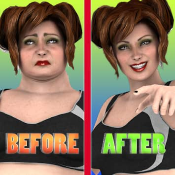 Amazon com: Liposuction Surgery Simulator (Ad-Free): Appstore for