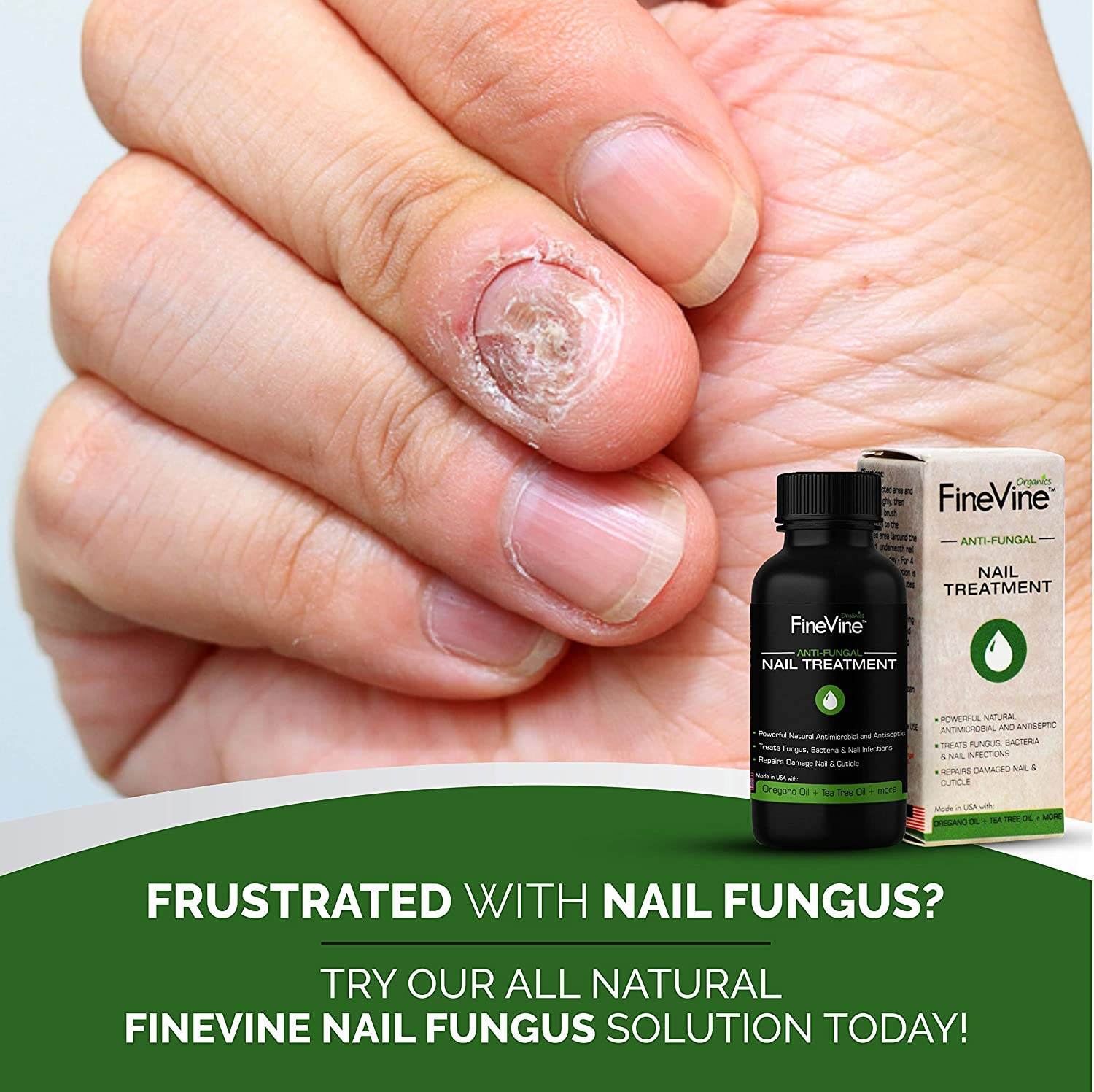 Amazon.com: Extra Strong Finger & Toenail Fungus Treatment| Organic ...