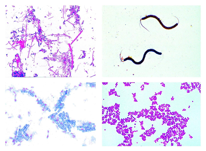 Biología Microscopía Micro muestras Serien cephalochordata Animales (cephalo chordata): Amazon.es: Industria, empresas y ciencia