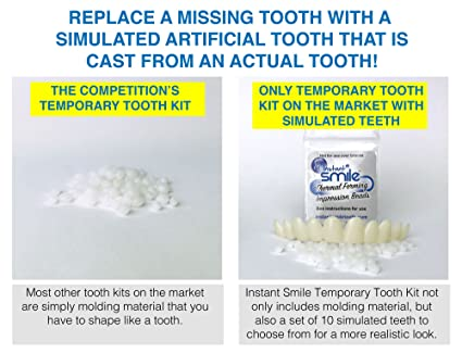 Amazon instant smile temporary tooth kit replace a missing amazon instant smile temporary tooth kit replace a missing tooth in minutes does not stain beauty solutioingenieria Images