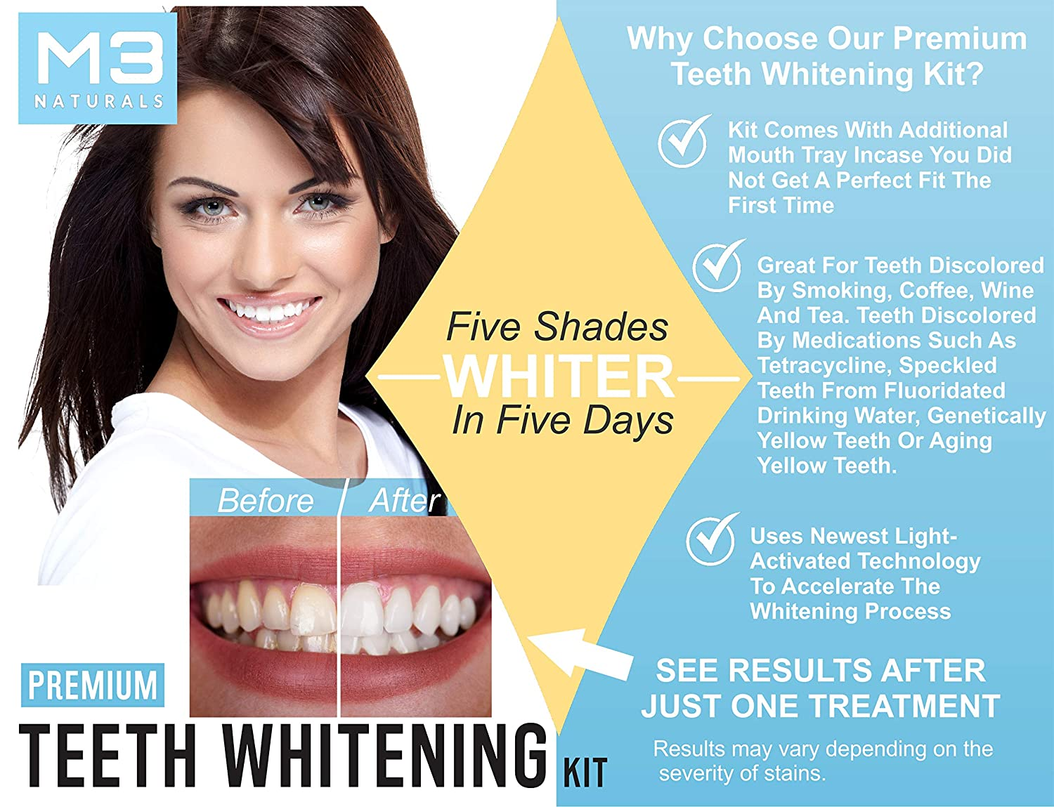 M3 Naturals Teeth Whitening Kit with LED Light Professional Stain Remover Non Sensitive 35/% Peroxide Gel Oral Remineralization Gel Custom Trays Retainer Case 5 /…