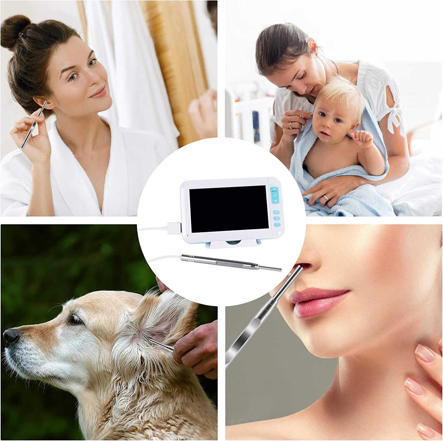 ScopeAround 3.9mm Ear Scope Otoscope HD Camera with 6 LED Lights Kalawen Digital Otoscope with 4.3 Inch Screen Ear Microscope Inspection Camera with Wax Removal Tool for Adults and Kids