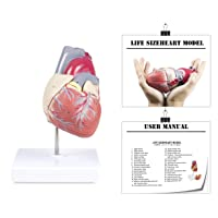 Vision Scientific VAC405-AN Life-Size Human Heart | 2 Parts | Anterior Wall Detachable to Reveal Ventricles, Atria, Valves, and The Aorta | Labelled Diagram Included