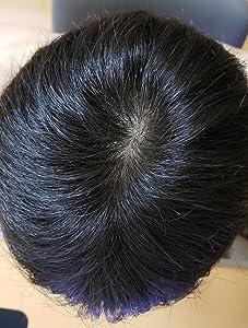 別の目的で買ったのに髪が増えた‼育毛効果あり⁉