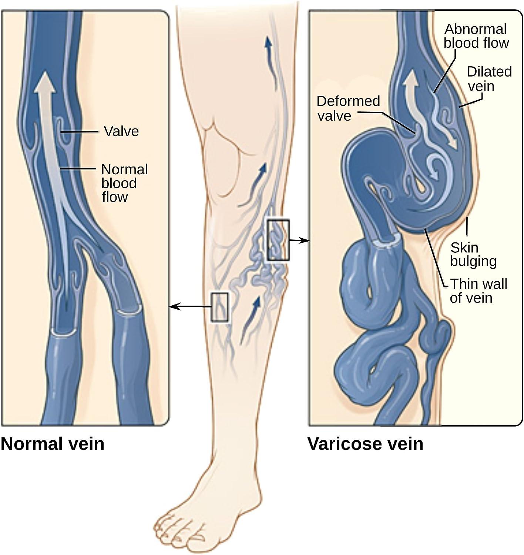 varicoză și dependență de presiune