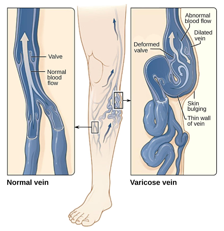 Amazon Varicose Vein Treatment Leg Circulation Supplement