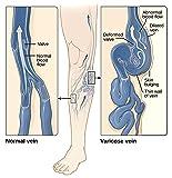Varicose Vein Treatment Leg Circulation