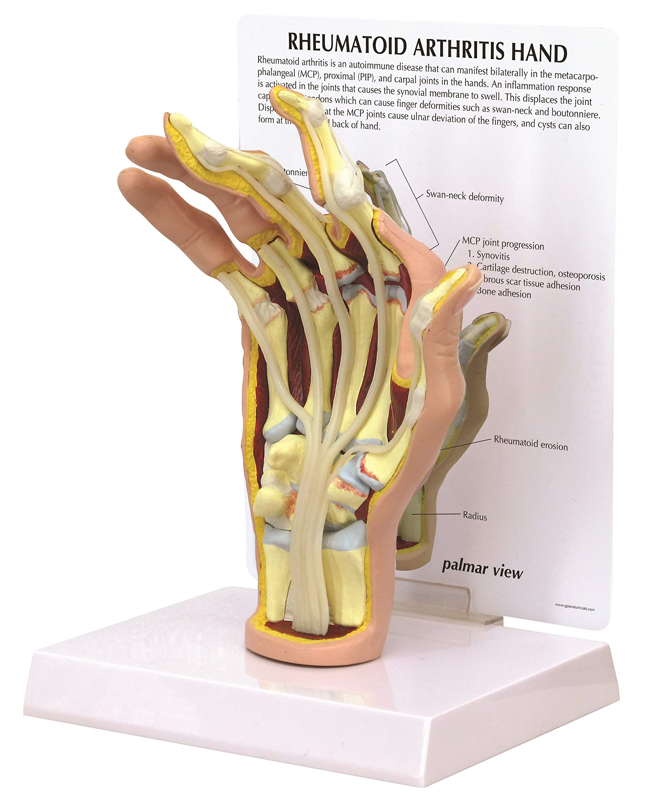 Hand Rheumatoid Arthritis (RA) Anatomical Model