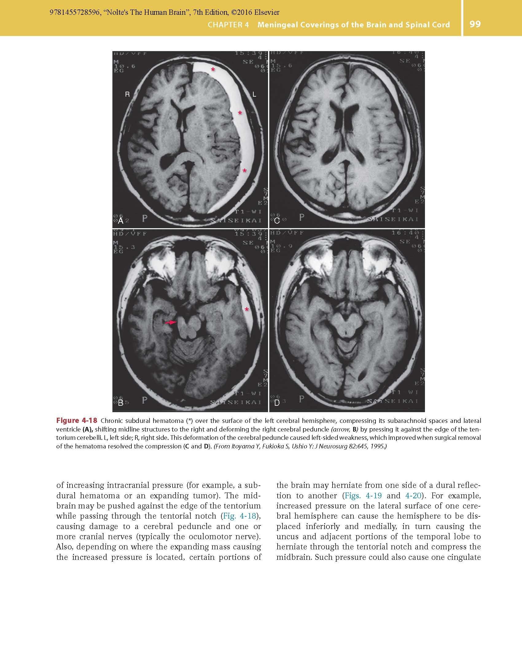 The human brain coloring book diamond - Nolte S The Human Brain An Introduction To Its Functional Anatomy Todd Vanderah Phd Douglas J Gould Phd 9781455728596 Anatomy Amazon Canada