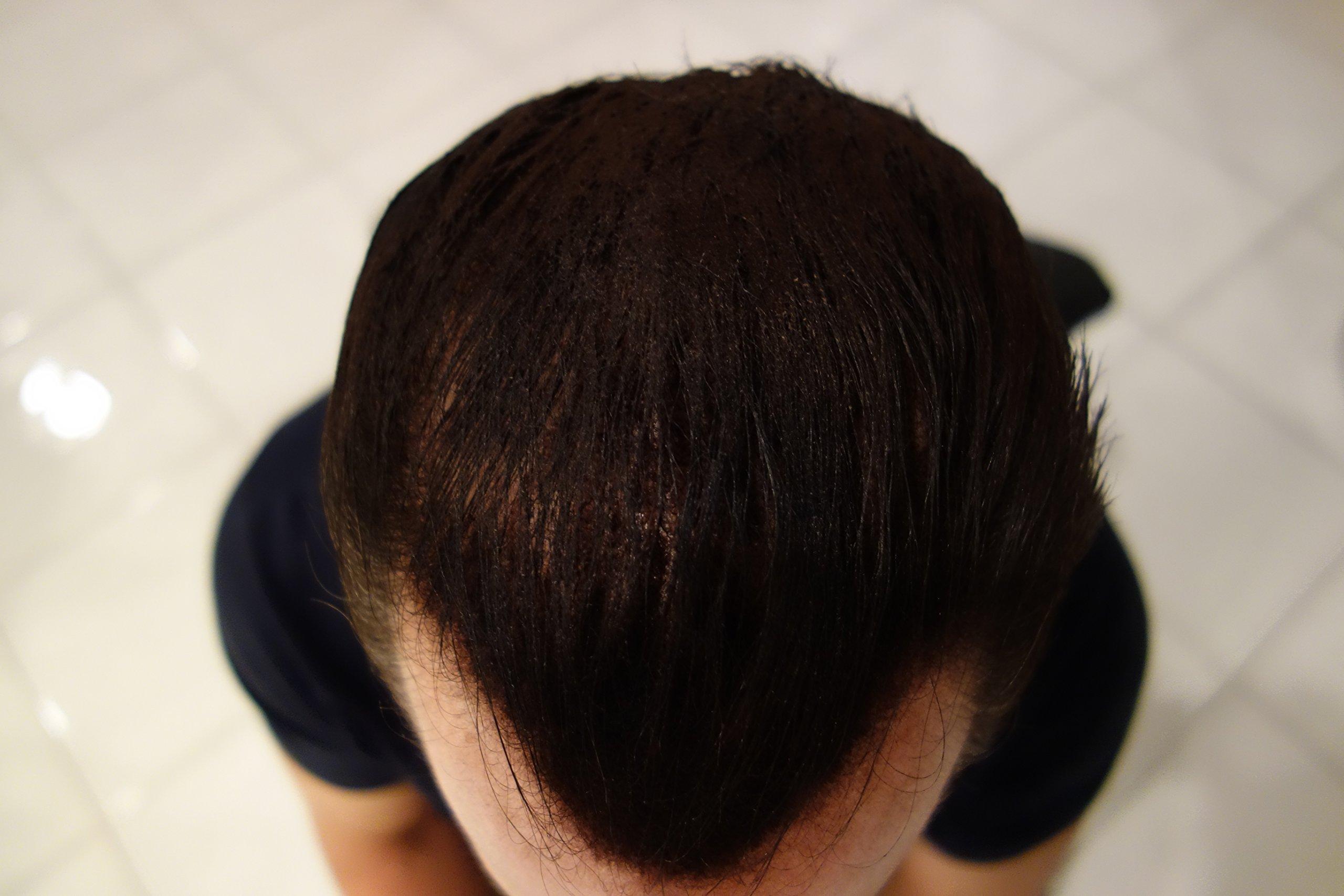 Finally Hair Hair Fiber Refill 100 Grams For Hair Loss Concealing by Finally Hair (Black) by Finally Hair