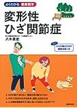 変形性ひざ関節症 (よくわかる最新医学)