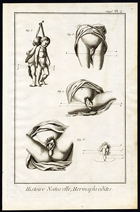 Amazon Antique Print Hermaphrodite Sexuality Sex Organ Vagina