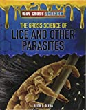 The Gross Science of Lice and Other Parasites