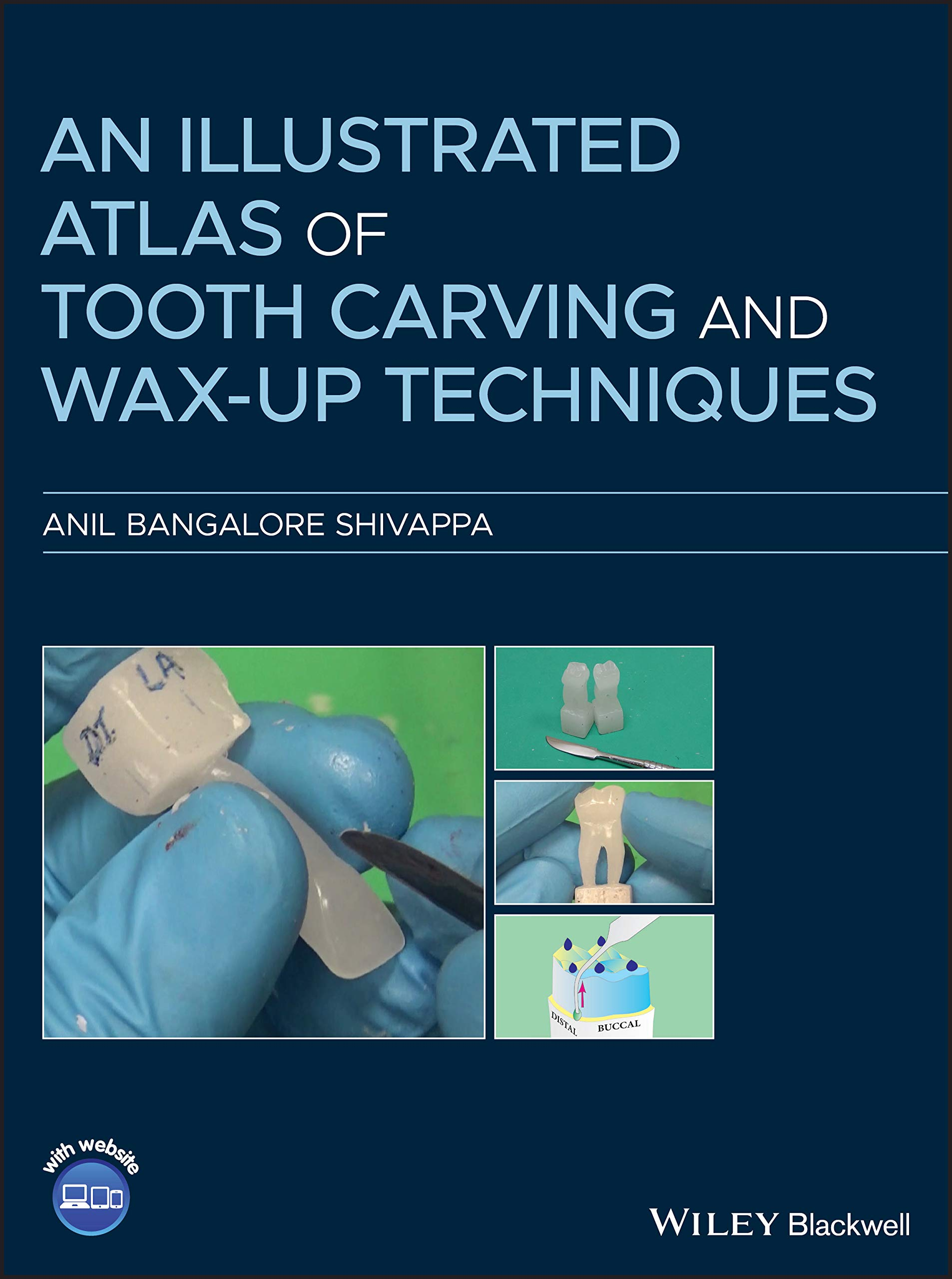 Book Cover for An Illustrated Atlas of Tooth Carving and Wax‐Up Techniques