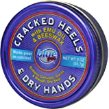 BLUE GOO Cracked Heels & Dry Hands Skin Softener for Dry Feet, Hands, Hydrating and Smoothing, Moisturizer, Dryness…