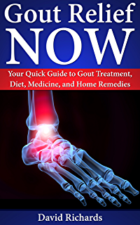 gout ankle alcohol how do you cure gout naturally food to avoid uric acid