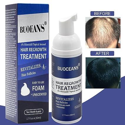 Tratamiento contra la pérdida de cabello (espuma)
