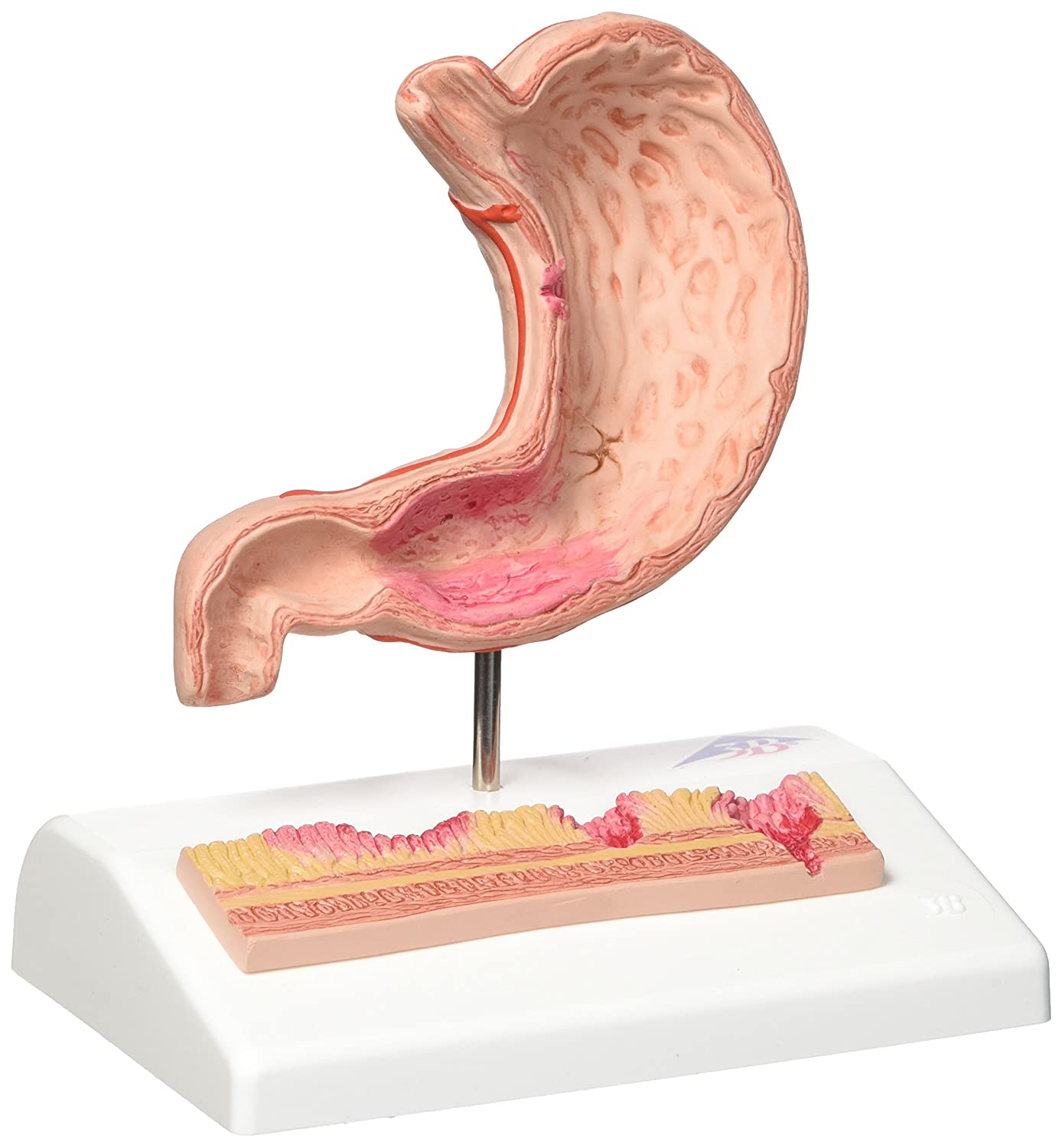 3b Scientific Human Anatomy Stomach Model With Ulcers Amazon