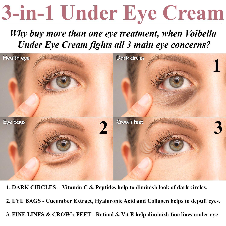 fine lines under eyes treatment