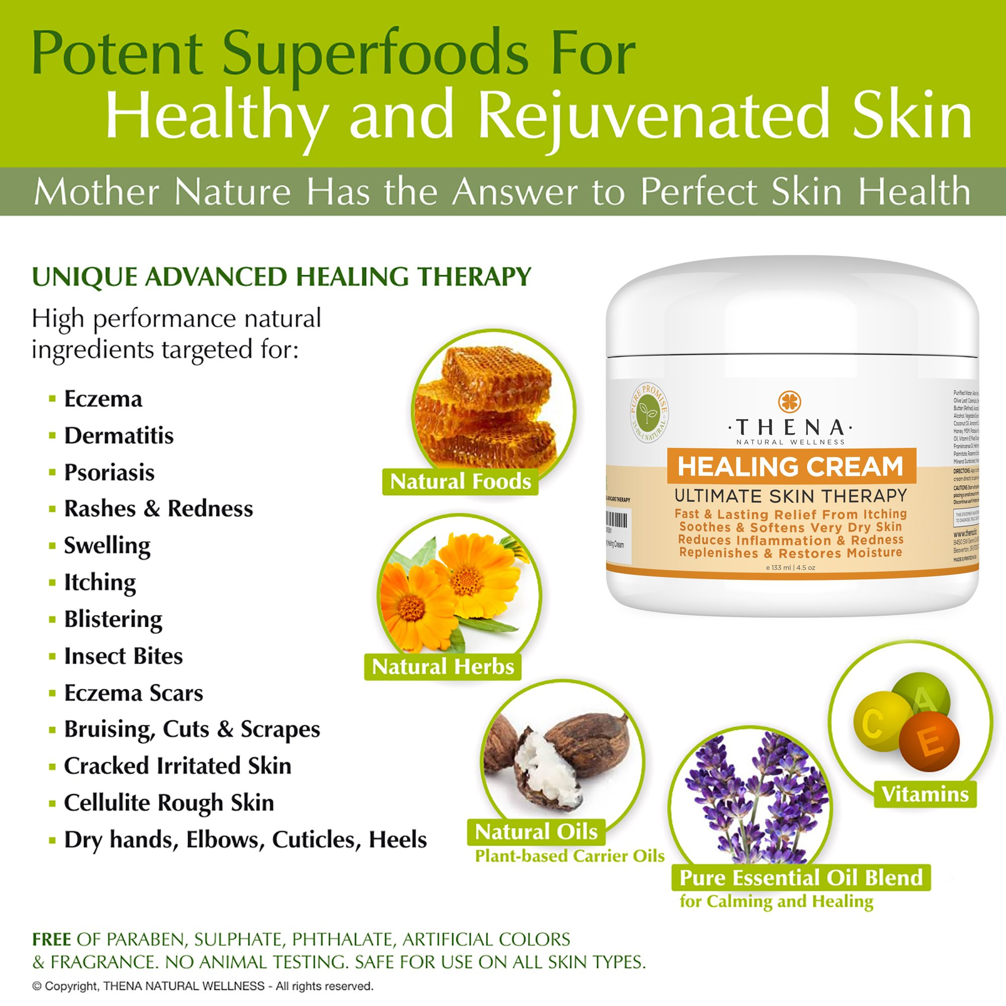 Best Healing Cream For Eczema Psoriasis Treatment, Natural Moisturizer For Face Body Dry Itchy Irritated Cracked Skin, Anti Itch Relief Therapy Lotion Relieve Atopic Dermatitis Rashes Rosacea Shingles by THENA Natural Wellness (Image #3)
