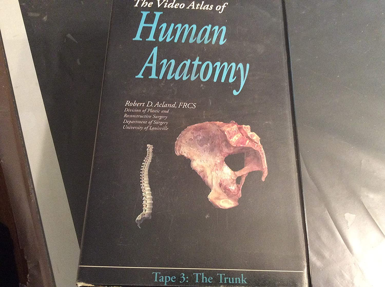 Amazon Aclands Video Atlas Of Human Anatomy The Trunk Vhs