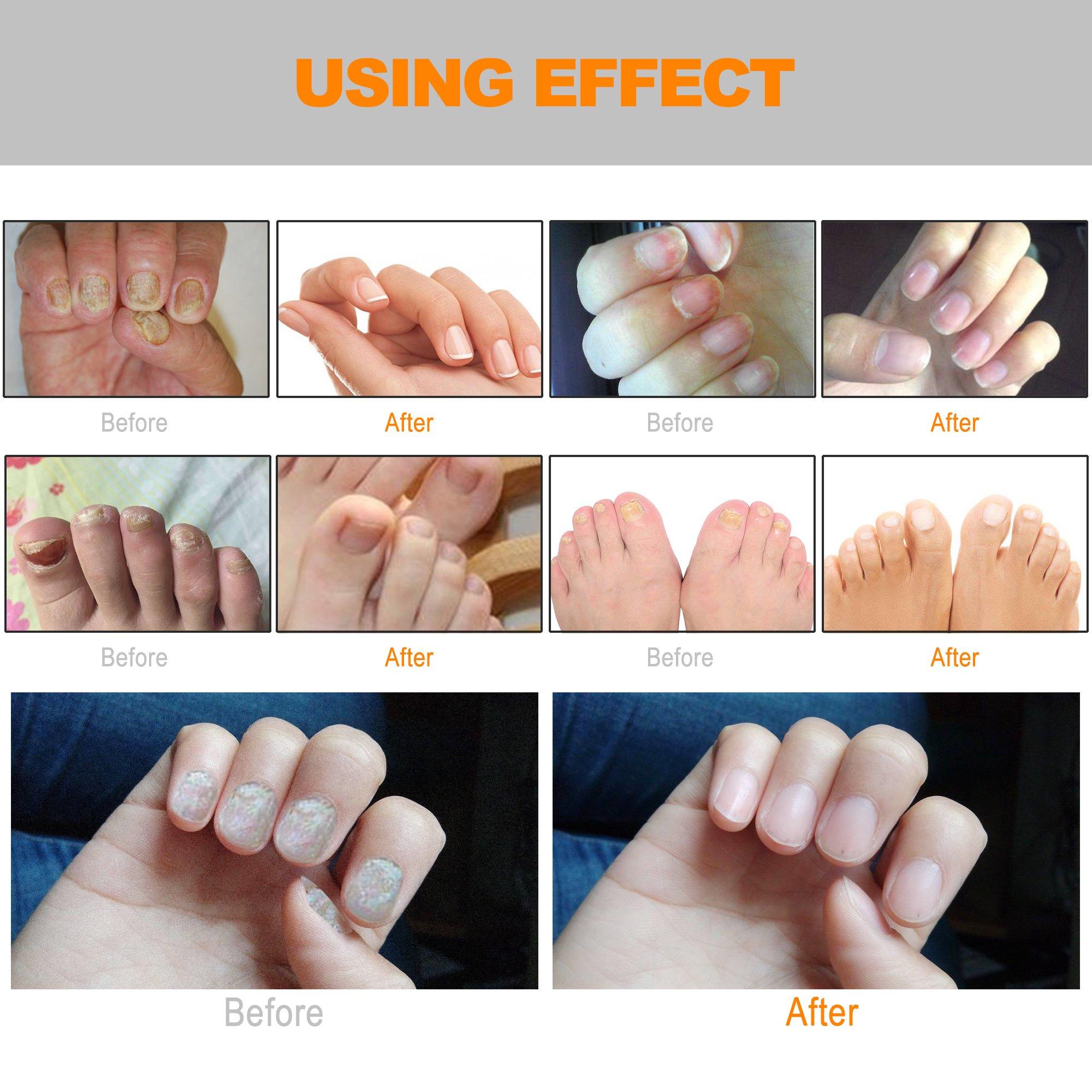 Toenail Fungus Treatment, Nail Fungus treatment pens, Specialize ...