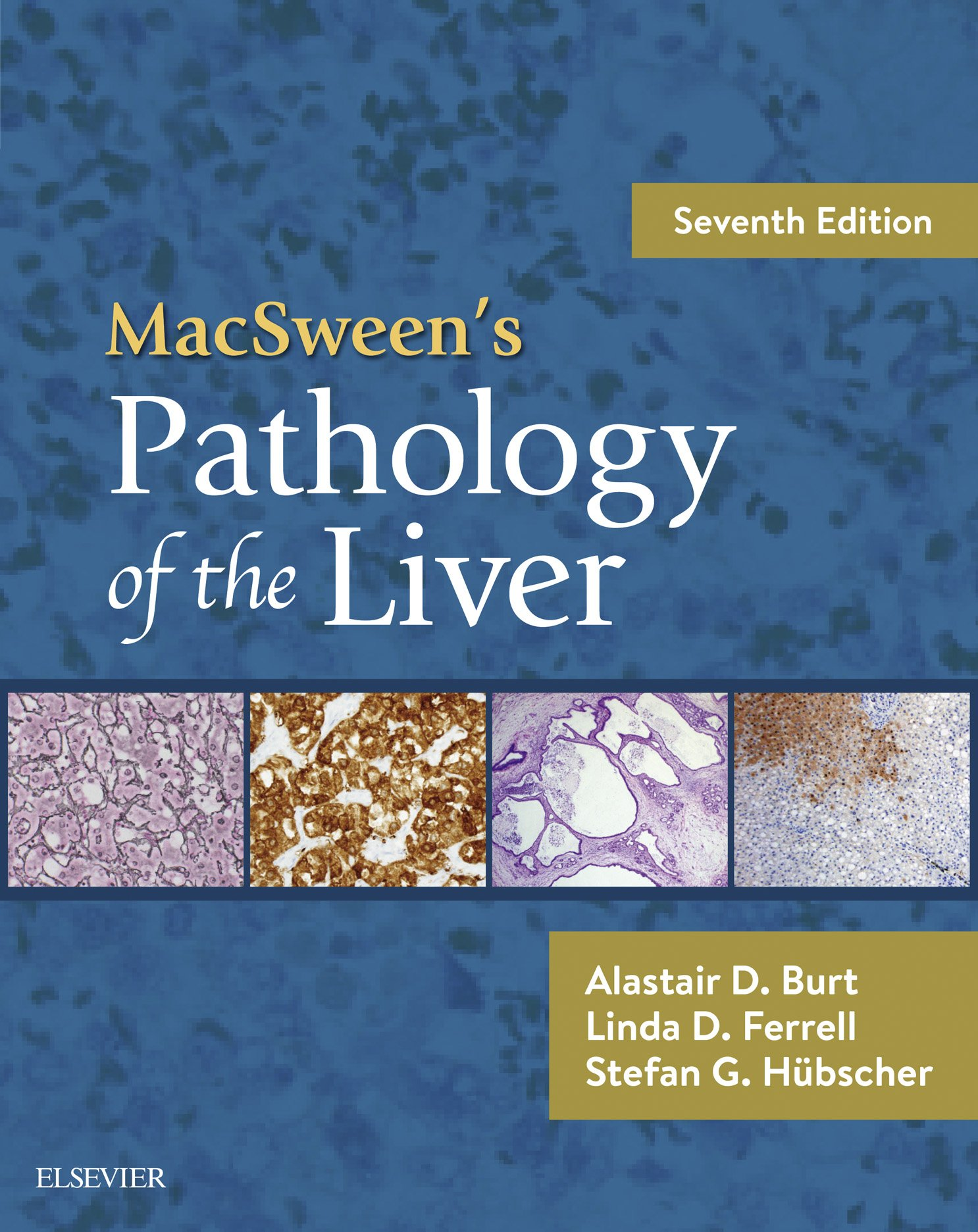 MacSween's Pathology Of The Liver E Book  English Edition